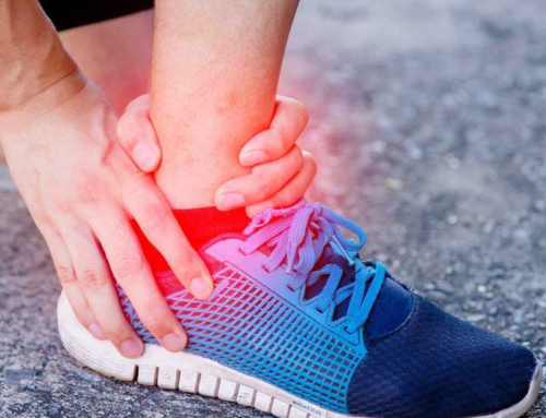 How to manage a sprained ankle