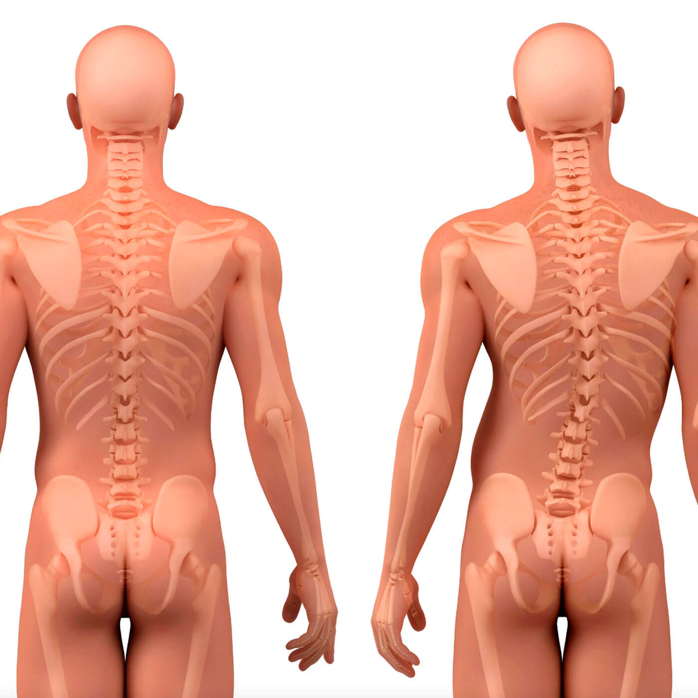 Essential Chiropractic and Healthcare Clinic- Chiropractic Conditions Scoliosis Treatment Melbourne Northern Suburbs