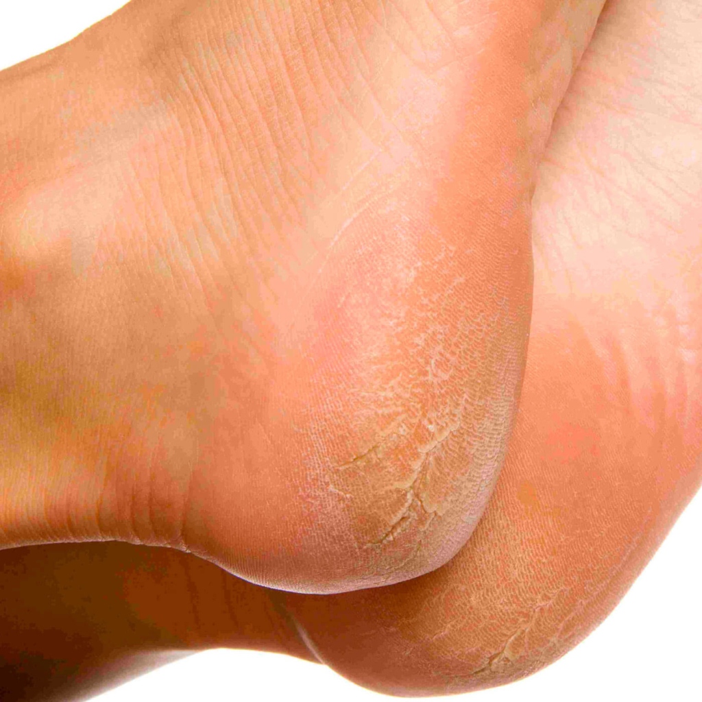 Essential Chiropractic and Healthcare Clinic - Chiropractor Podiatry Conditions Corns and Callouses