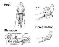 Essential Chiropractic and Healthcare Clinic - Podiatric Treatments Sprained Ankle Treatment and Relief