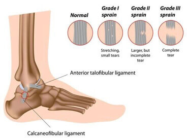 Essential Chiropractic and Healthcare Clinic - Podiatric Treatments for Sprained Ankle