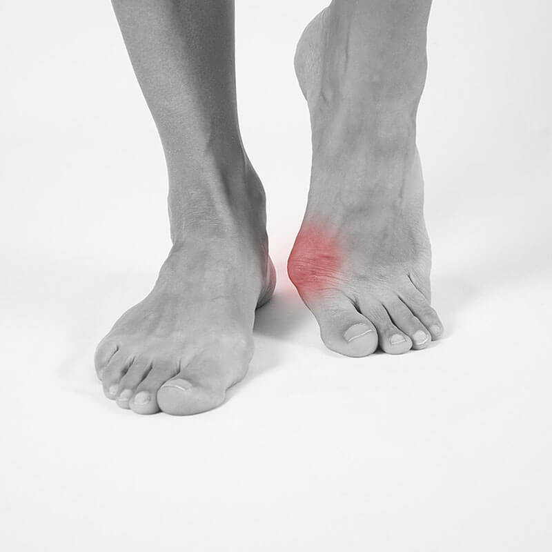 Essential Chiropractic and Healthcare Clinic - Podiatry Explanations Bunions Treatment