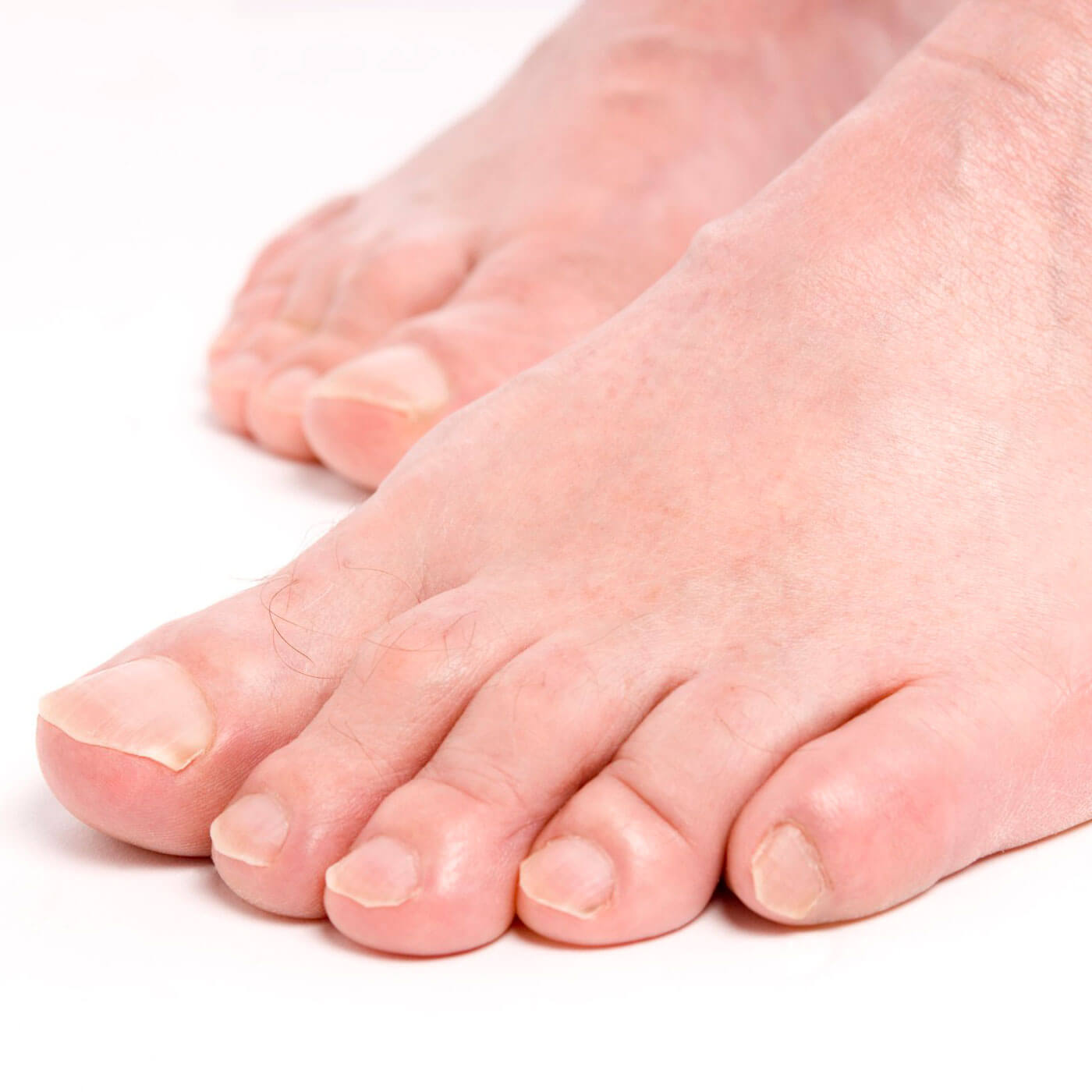 Essential Chiropractic and Healthcare Clinic - Podiatry treatment for Plantar Warts